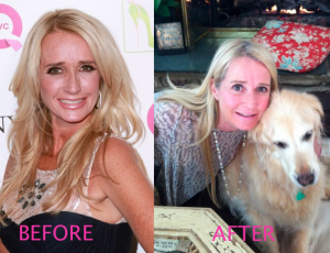 KimRichards-Before&AfterNOSEJOB