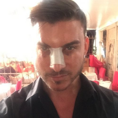 Jax Taylor Gets Another Nose Job; Vail Bloom And Chris Pine Dating! Plus, Vanderpump Rules Is Filming Season 4!