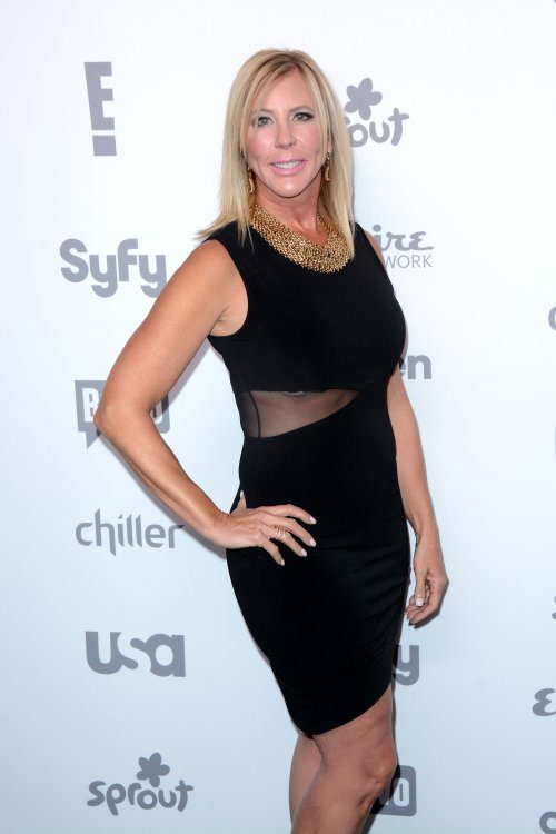 Is Vicki Gunvalson Ready For MORE Plastic Surgery?! She'll Do Whatever It Takes To Look Good!