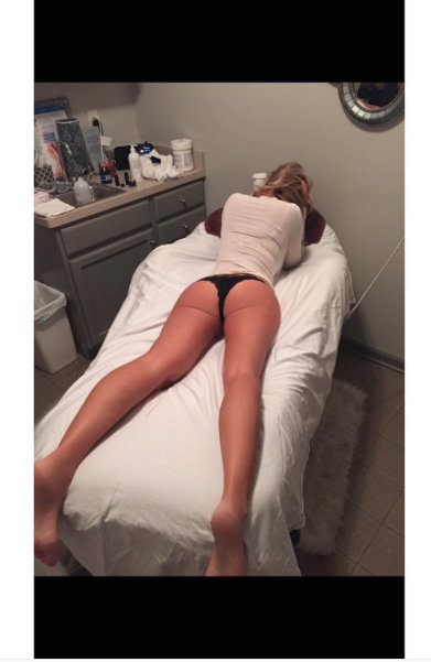 Kim Zolciak anti-cellulite treatment